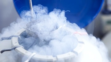 Oocyte Cryopreservation (Egg Freezing)