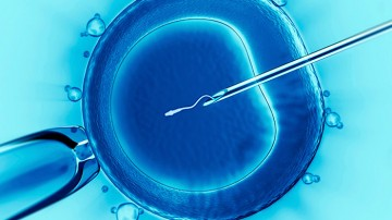 Microinjection (ICSI) or Micro Insemination